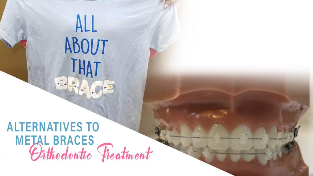 Alternatives To Metal Braces - Orthodontic Treatment